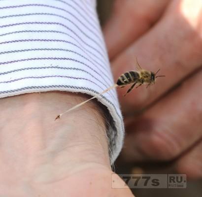 Укус пчелы: первая помощь.