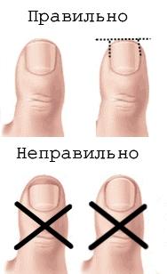 Здоровье: вросшие ногти на ногах