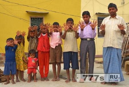 Удивительная индийская семья, в которой все 25 родственников имеют по 12 пальцев на руках и ногах