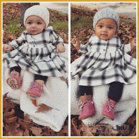 Медицинское чудо – очаровательные девочки близняшки одна черная, а другая белая.