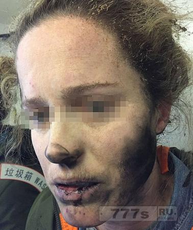Ужас в самолете, наушники загорелись на голове у женщины во время полета.