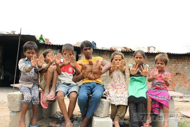 Мальчик с 30-сантиметровыми руками, известный как «Дьявол», избегает жителей деревни, которые думают, что он был проклят.