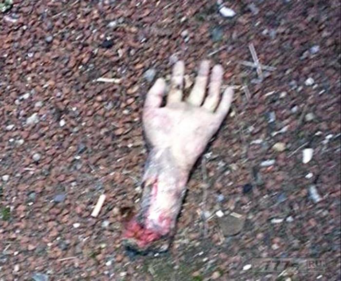 «Оторванная рука» брошенная на дороге возбудила большую полицейскую операцию.