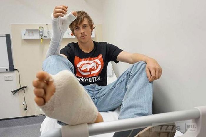 Операция по пересадке пальцев с ноги на руку