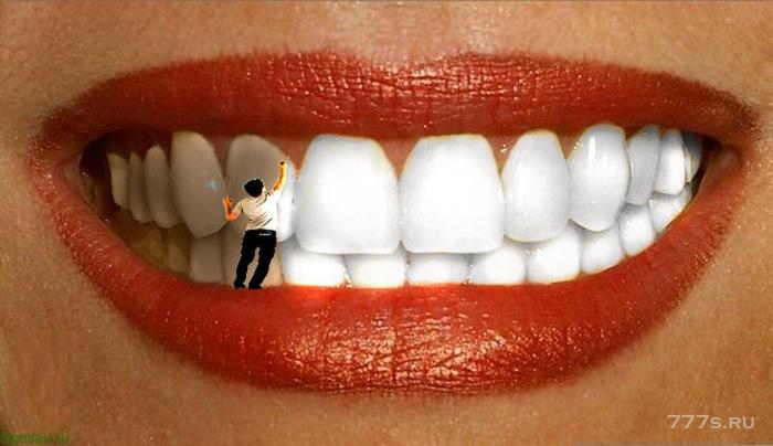 Как лучше отбелить зубы