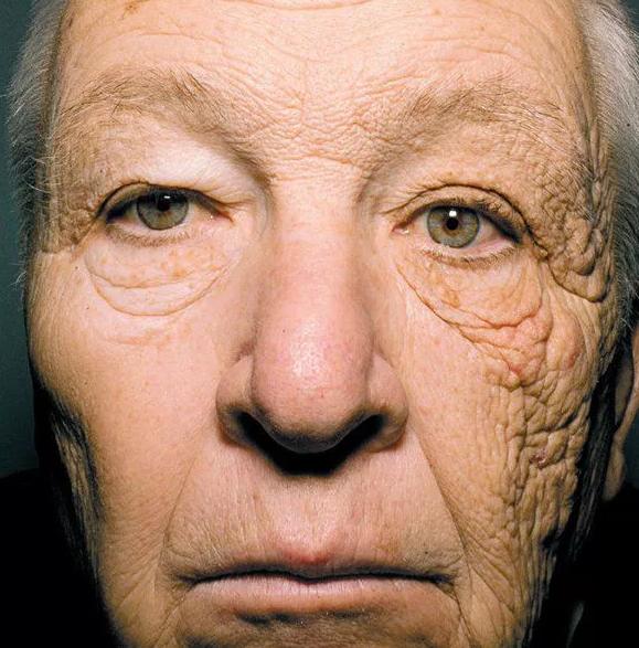 Фотография водителя грузовика показывает, как выглядит лицо после 28 лет воздействия солнца