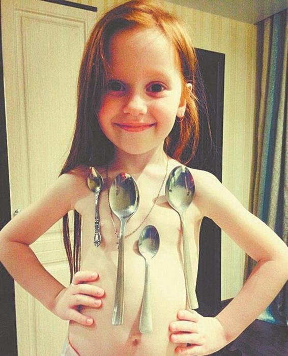 Маленькая девочка, 6 лет, с «магнитной способностью» может удерживать 10 металлических ложек на своем теле