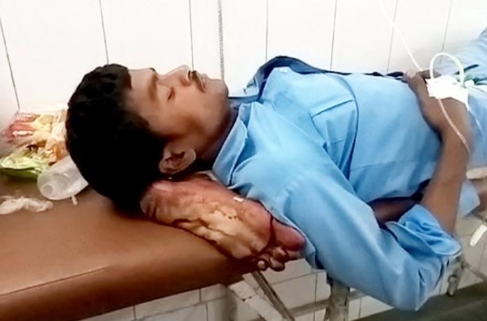 Мужчина использует свою собственную ногу в качестве подушки после того, как ее ампутировали