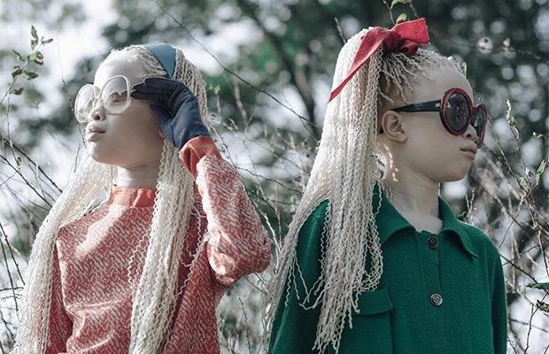 Близнецам-альбиносам удалось покорить моду