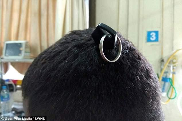 Мужчина в Индии госпитализирован с ключом, воткнутым в его череп после драки