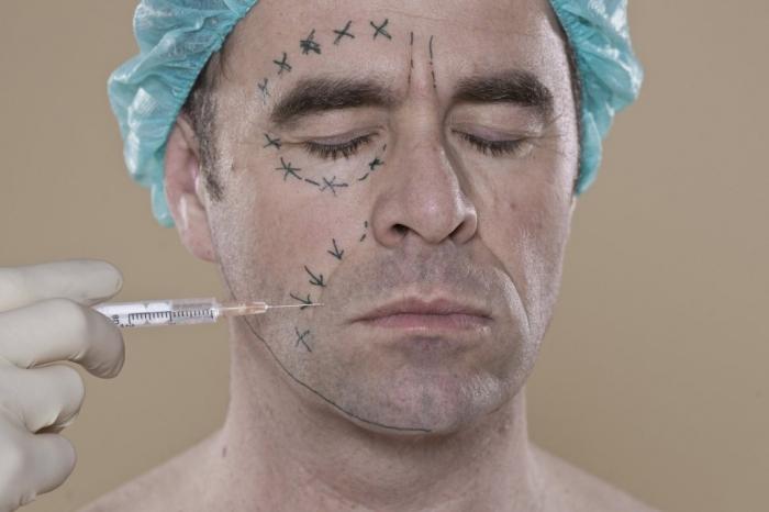 Хирурги рассказывают, что мужчины всех возрастов стремятся сделать операцию, чтобы повысить уверенность в себе и выглядеть моложе