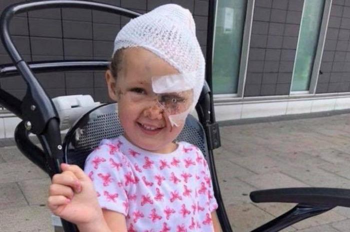 4-летняя девочка, чуть не лишилась черепа из-за «дьявольской собаки», когда она напала на неё