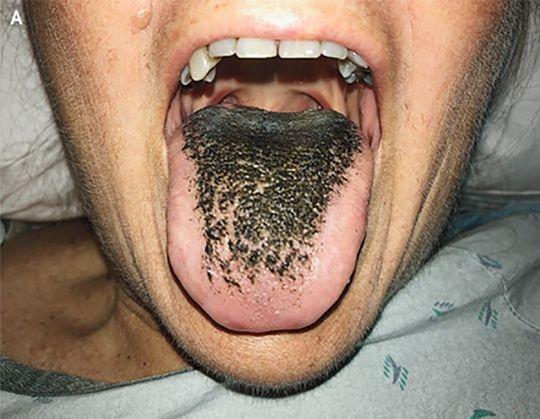 Язык у женщины внезапно становится волосатым после того, как она попала в аварию