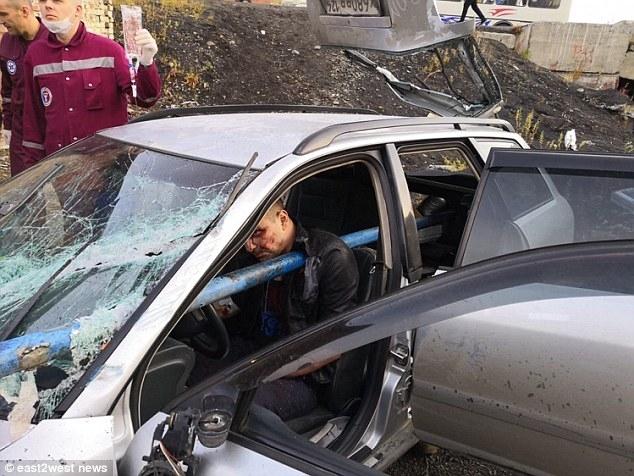 У водителя образовалась огромная дыра в груди, врачи даже могли смотреть через неё после того, как он налетел на трубу в автокатастрофе в России