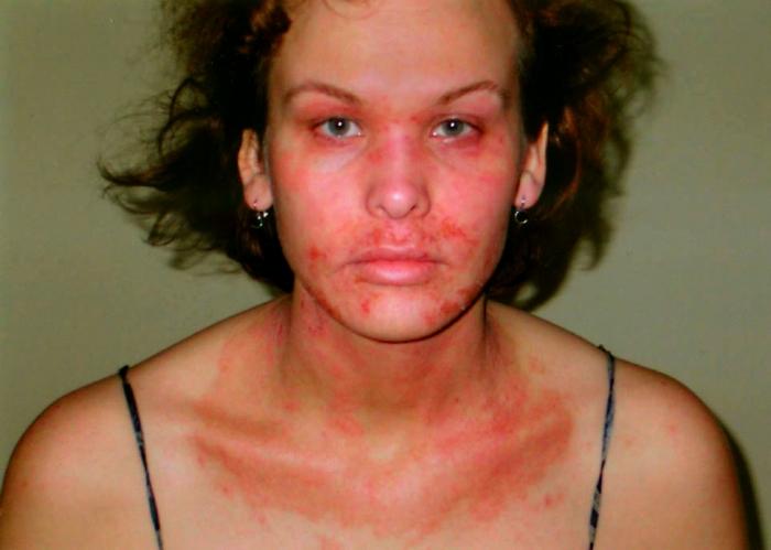 У женщины столько аллергий на всё, что она должна носить перчатки и маску, когда выходит на улицу