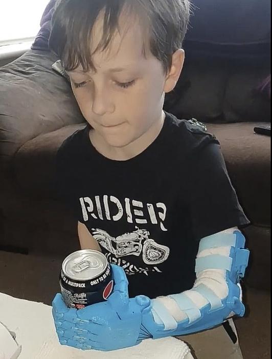 Отец мальчика, рожденного без левой кисти, сделал своему сыну-инвалиду 9 бионических рук при помощи своего собственного 3D-принтера