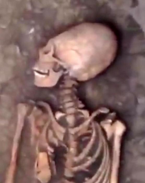 На фото мы видим скелет инопланетной женщины с яйцевидной головой, найденной в могильнике бронзового века