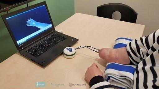 Пациент использует управление мозгом самой продвинутой бионической руки в мире, имеющей чувство прикосновения