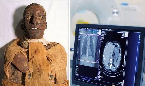 «Удивительно!» - Почему сканирование 3000-летней мумии фараона ошеломило археологов?