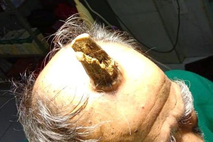 У мужчины появился на голове странный нарост, пришлось делать операцию