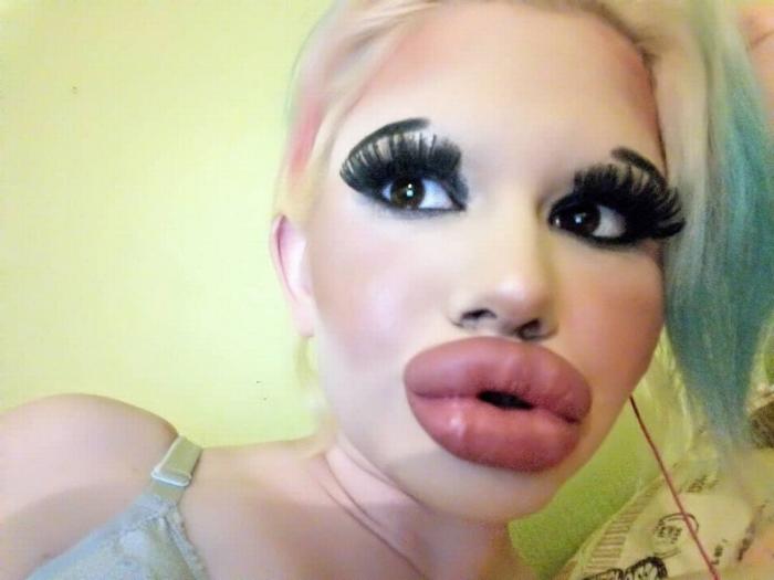 Женщина потратила целое состояние на наполнитель для губ увеличив их в три раза