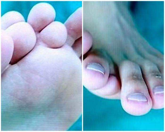 21-летний китаец с девятью пальцами на одной ноге подвергается операции, чтобы удалить лишние пальцы