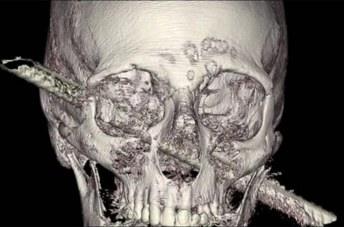 После несчастного случая на стройке мужчина остался с железным прутом в голове. Он говорит, что не чувствовал боли