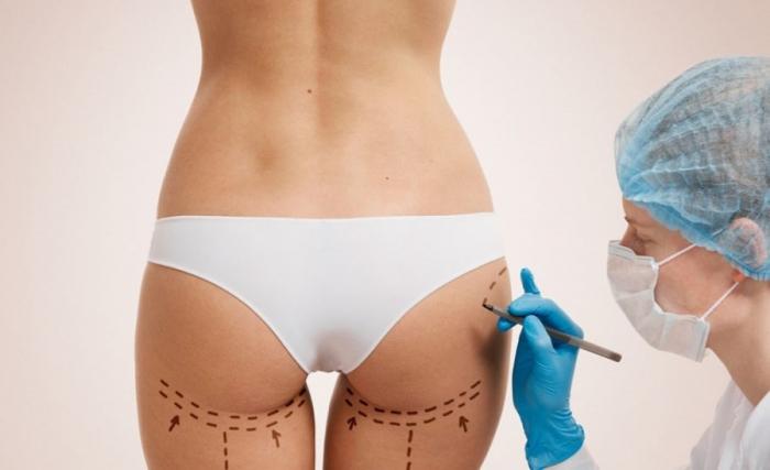 Плохая работа хирургов вызвала боль в заднице у модели Инстаграм