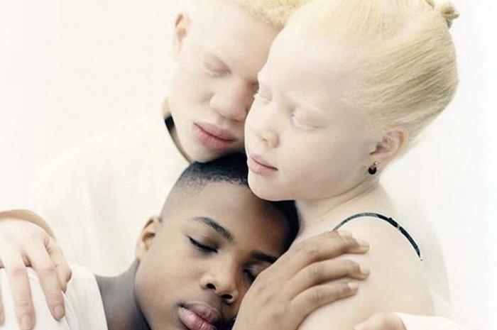 Дети-альбиносы и их брат штурмуют мир и разрушают клеймо