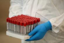В Молдавии за сутки выявили 97 случаев коронавируса
