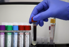 В Башкирии выявили 258 случаев коронавируса за сутки